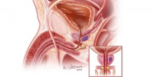 prostate cancer treatment nj